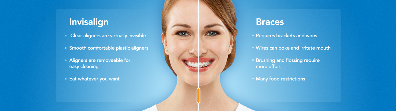Invisalign vs. Braces: The Top 10 Differences | Mark C ...