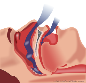 Sleep apnea, sleep disorder