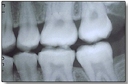 Radiograph of eroded teeth