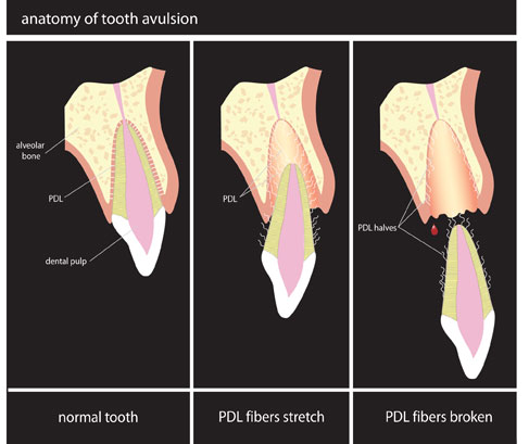 Chart of avulsed tooth and how to handle the situation by Dr. Marchbanks, Alrington TX