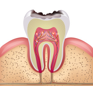 Tooth cross section with dental caries