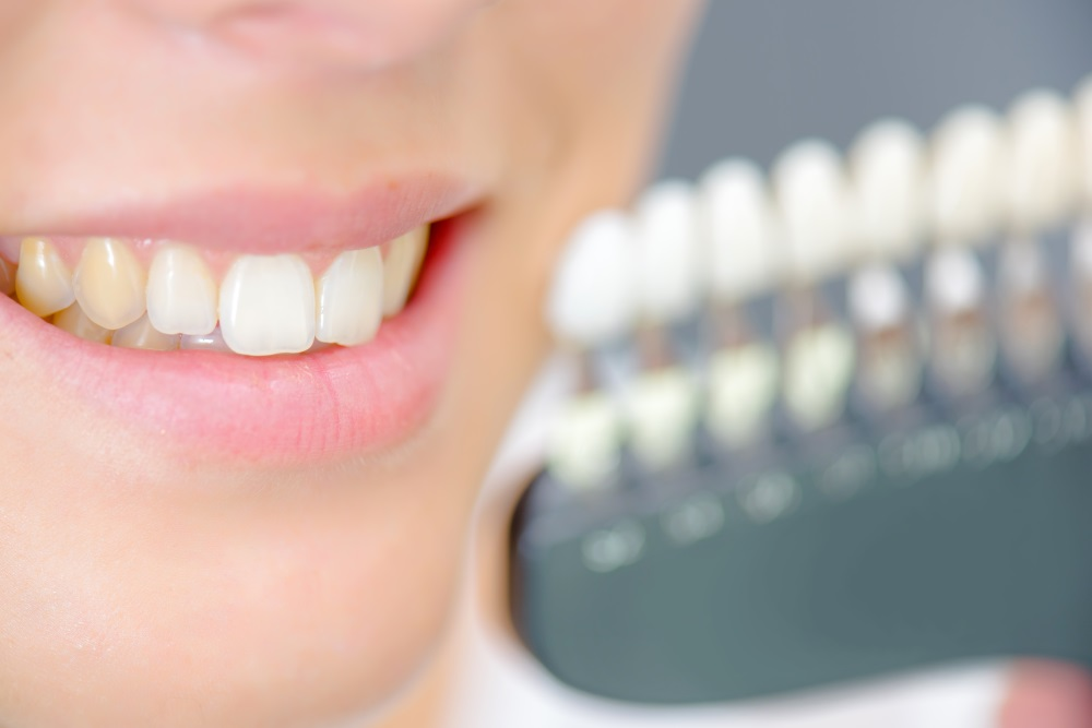 Are Some Teeth Naturally Discolored