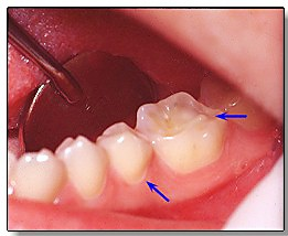 Diagnosis-and-Management-of-Dental-Erosion-illustration-4