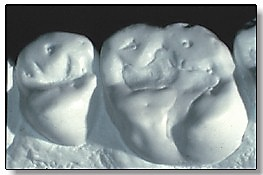 Study casts of eroded teeth