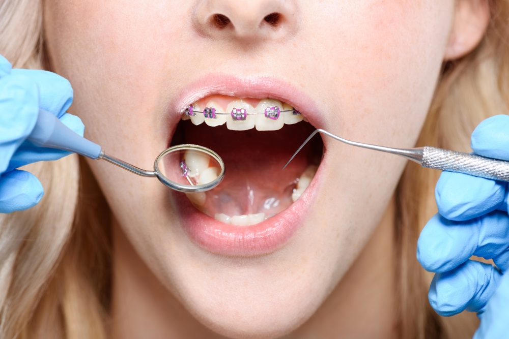 Learn The Top Foods (And WORST Foods) For Braces