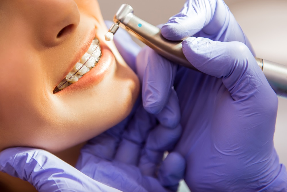 Orthodontics…It's More About A Pretty Smile