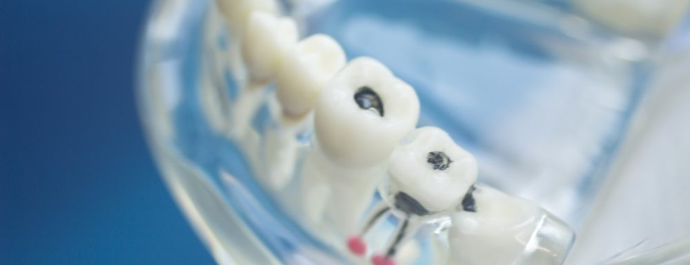 Common Problems and Best Care for Your Molars