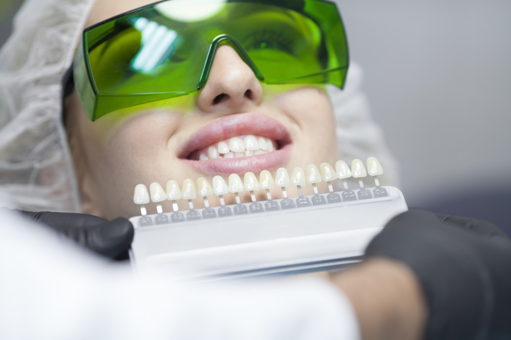 Tooth Whitening FAQs